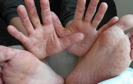 """Вірус Коксаки або синдром """"рука-нога-рот"""""""