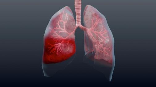 12 листопада - Всесвітній день боротьби з пневмонією!