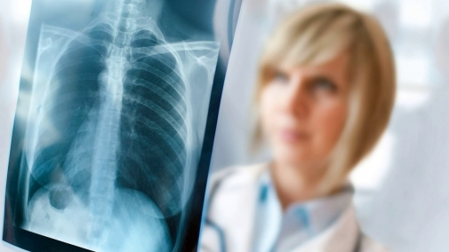 Що потрібно знати про туберкульоз?