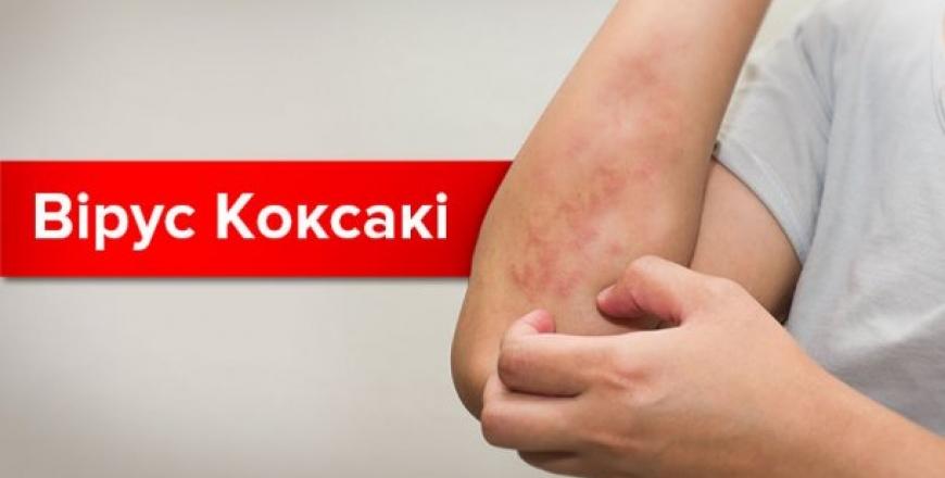 Що потрібно знати про вірус Коксакі?