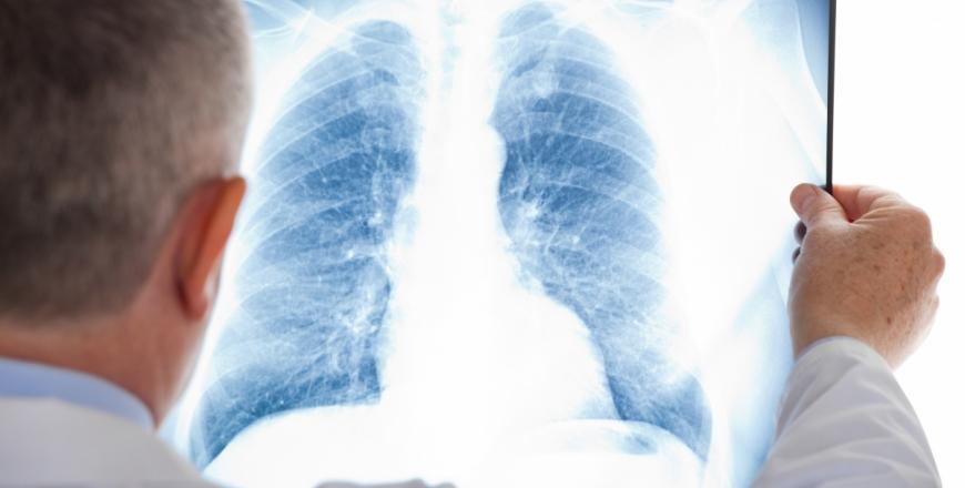 24 березня - Всесвітній день боротьби з туберкульозом!