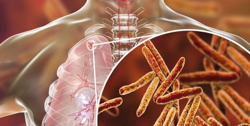 Захисти себе від туберкульозу!